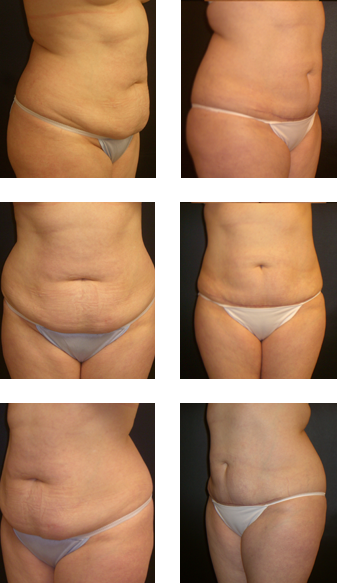 Liposuction of the abdomen and flanks & a lower abdomen skin excision