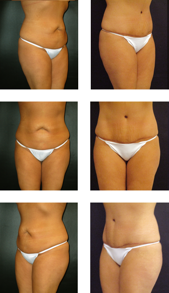 Abdominoplasty & liposuction of the abdomen and flanks